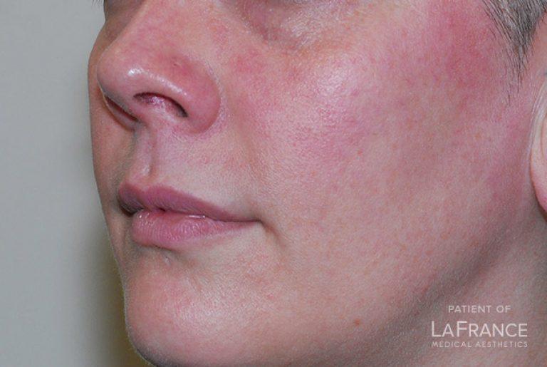 laser-facial-spider-veins