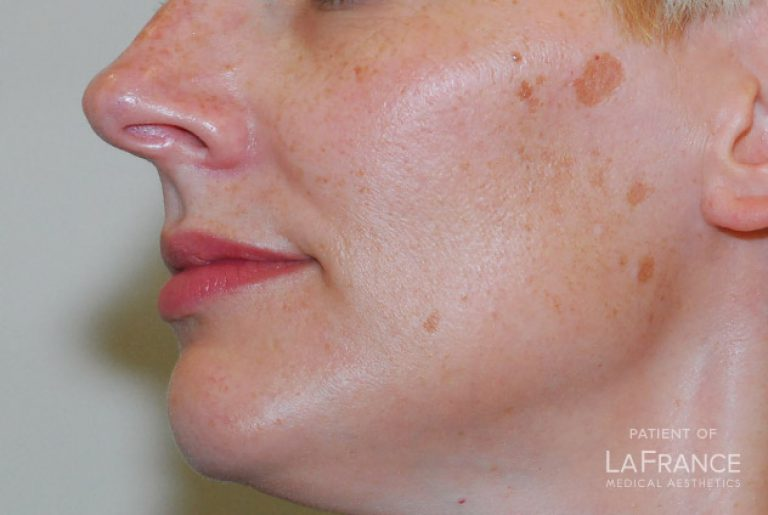 Laser Spot Removal - LaFrance - Medical Aesthetics Clinic In Central